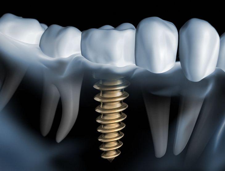 Implant Dentistry - Photo 02