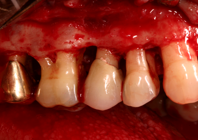 Periodontal Surgery - Photo