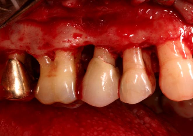 Periodontal Surgery - Photo